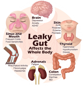 Is Leaky Gut Causing Your Symptoms?